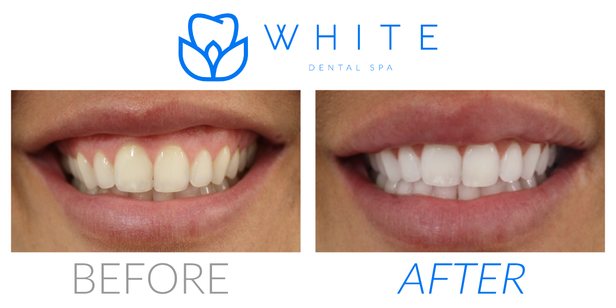 Dallas Teeth Whitening 75219 White Dental Spa